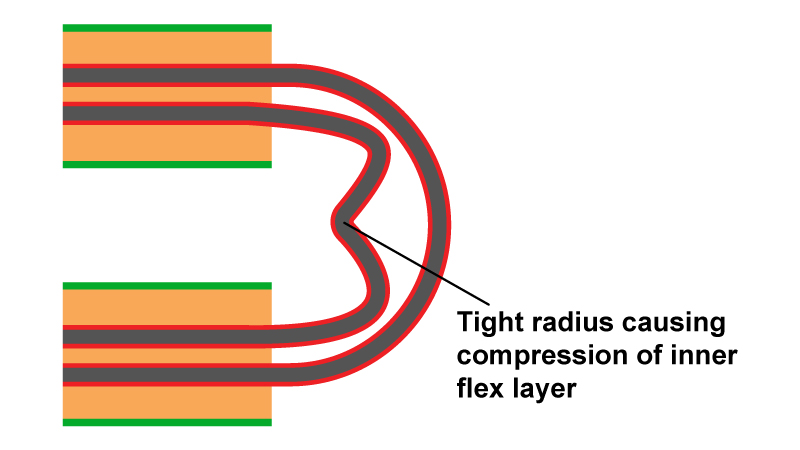Severe u shaped bend with buckled inside flex pair